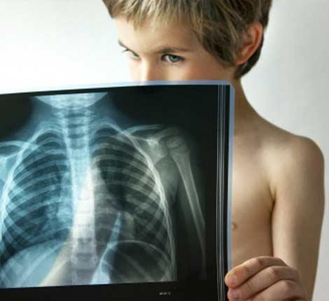 Воспаление легких или пневмония у детей